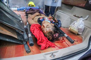 (EDITORS NOTE: Image depicts death) A young boy seen dead inside an ambulance after being shot in the head when police and military open fire on peaceful protesters during a demonstration against the military coup. Anti-military coup protesters took to the streets of Mandalay to protest against the military coup and demanded the release of Aung San Suu Kyi. The police and military responded by firing live rounds, killing two protesters and injuring many others. Myanmar's military detained State Counsellor of Myanmar Aung San Suu Kyi on February 01, 2021 and declared a state of emergency while seizing the power in the country for a year after losing the election against the National League for Democracy (NLD).