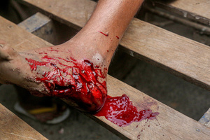 (EDITORS NOTE: Image contains graphic content) A wounded foot which has been shooted by police bullets seen on a wooden bench at a makeshift hospital from a social charitable organization. Anti-military coup protesters took to the streets of Mandalay to protest against the military coup and demanded the release of Aung San Suu Kyi. The police and military responded by firing live rounds, killing two protesters and injuring many others. Myanmar's military detained State Counsellor of Myanmar Aung San Suu Kyi on February 01, 2021 and declared a state of emergency while seizing the power in the country for a year after losing the election against the National League for Democracy (NLD).