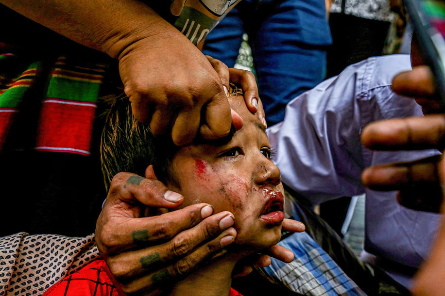 (EDITORS NOTE: Image contains graphic content) A bruised child after being hit by a slingshot fired by soldiers seen during an anti-coup demonstration. Myanmar Security Forces shot at anti-military coup protesters and those close to them with slingshots, rubber bullets and other materials thus injuring young children and many were arrested.