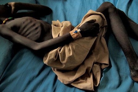 An extremely underweight patient seen in Mapuordit hospital. Perhaps the people of South Sudan suffer the most on Earth. Decades of fight, starvation, life on the run with nothing except of clothes, children being born in refugee camps with no home and no country. If a normality comes, it is short term between two cruel wars. There is lack of everything. For example in 2012 there were just two ocularists for the whole country. Mostly Christian and animist South Sudan seeks for independence from Sudan which is Islam dominated and ethnically different.