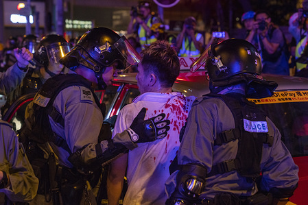 A man is being rescued by the police after he was attacked and injured by anti-government protesters during the demonstration. Anti-government protest continued across Hong Kong despite the withdrawal of the extradition bill.